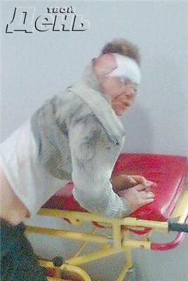 Людоеды-нацисты отрезали женщине руку и съели. ФОТО