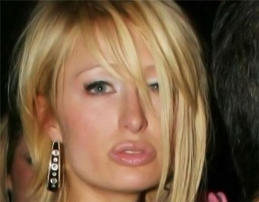 Спешите видеть: новые губы Перис Хилтон. ФОТО