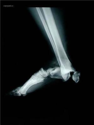 Забійні рентгенівські знімки. Як страшно жити. ФОТО