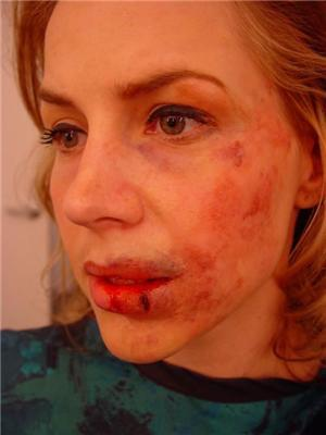 Что случилось с женщиной? Шокирующие кадры. ФОТО