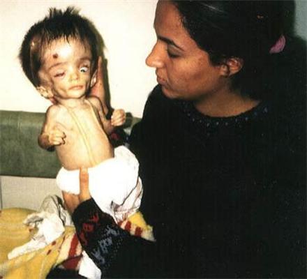 Ирак: Дети-мутанты. Что же ждет Львов после фосфора? ФОТО