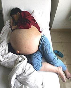 Жінка виростила на животі 50-кілограмову пухлину. ФОТО