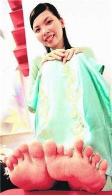 Їй 23. Вона живе у В'єтнамі і в неї пальці - віялом. ФОТО