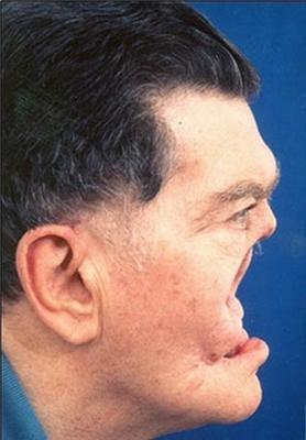 У Канаді живе людина без носа. ФОТО не для слабкодухих