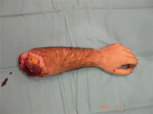 Человек с рукой в ноге. ФОТО не для слабонервных
