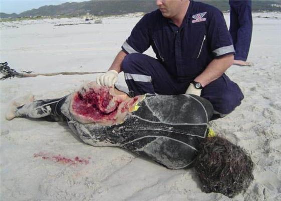 Люди с крепкими нервами смотрят на укус акулы! ФОТО