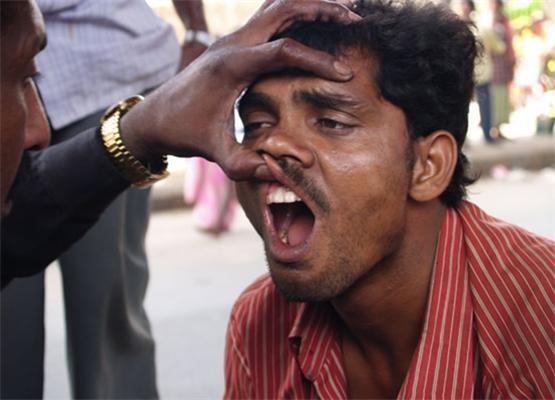 Жесть! Індійська стоматологія