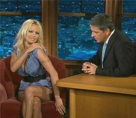 Вы никогда не замечали темных пятен на руке Памелы Андерсон?
