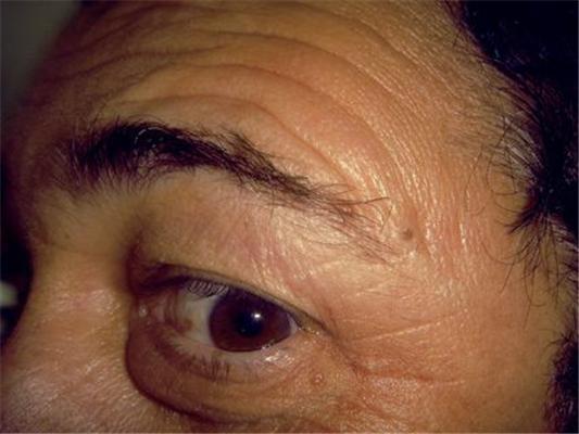 Фотографии, сделанные полностью слепыми людьми