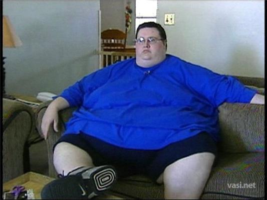 Самый толстый человек в мире похудел на 168кг. ФОТО