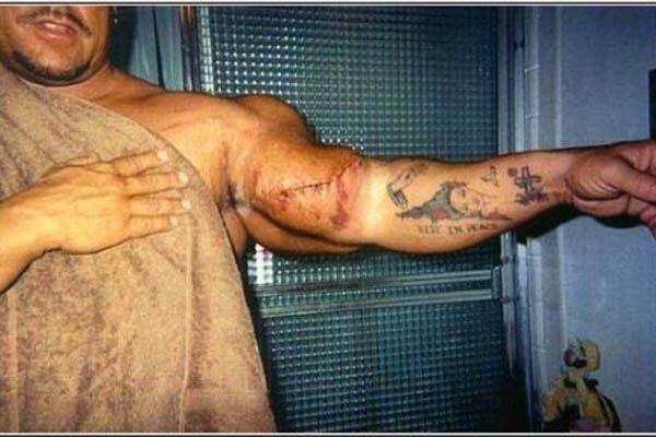 Страшные жертвы допинга (фото)