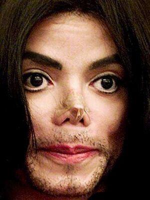 Врачи нашли у Майкла Джексона рак кожи