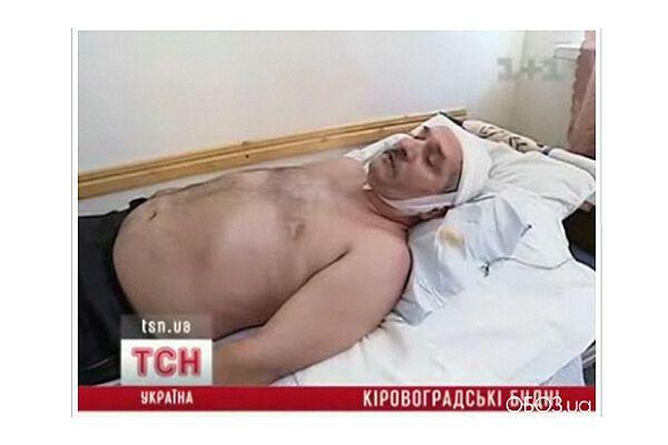 Головний ДАІшник Кіровограда влаштував п'яну бійку
