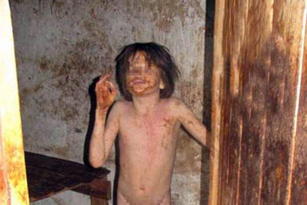 Мальчика-инвалида держали в чулане 10 лет