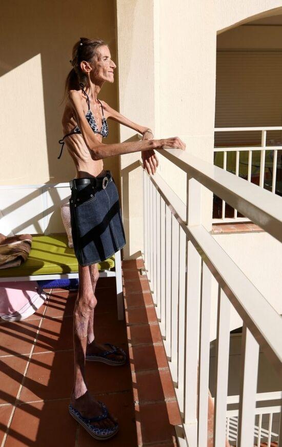 Фото самая худенькая девушек