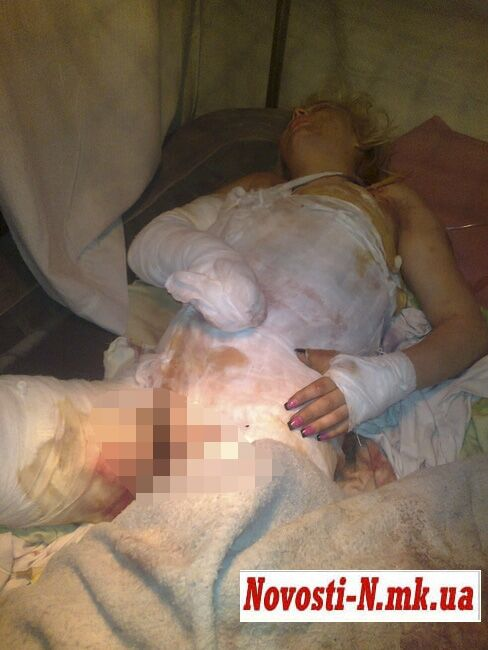 Дети чинуш изнасиловали девушку и попытались ее сжечь