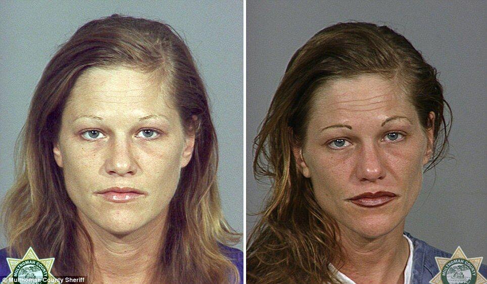 Алкоголики до и после картинки