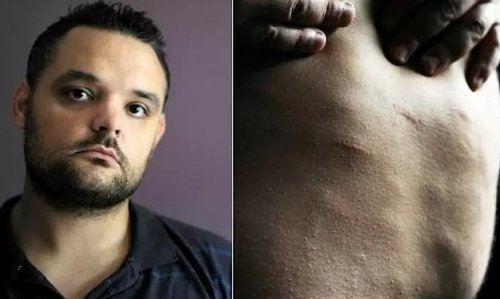 Жировые шарики под кожей превратили жизнь мужчины в ад
