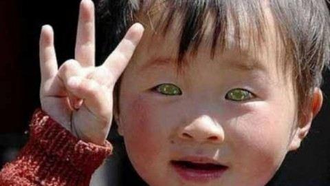 У Китаї живе дитина з котячими очима