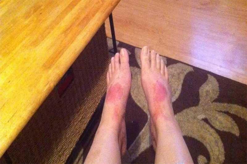 Женщина 20 лет не ходила на работу из-за аллергии на обувь