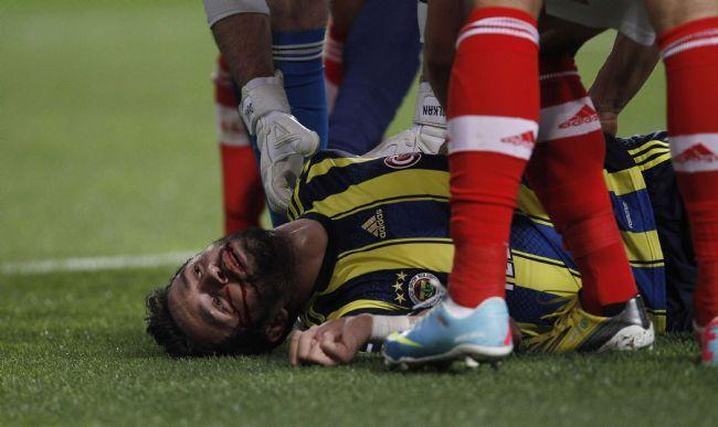 Жуткая травма игрока в полуфинале Лиги Европы. Фото. Видео
