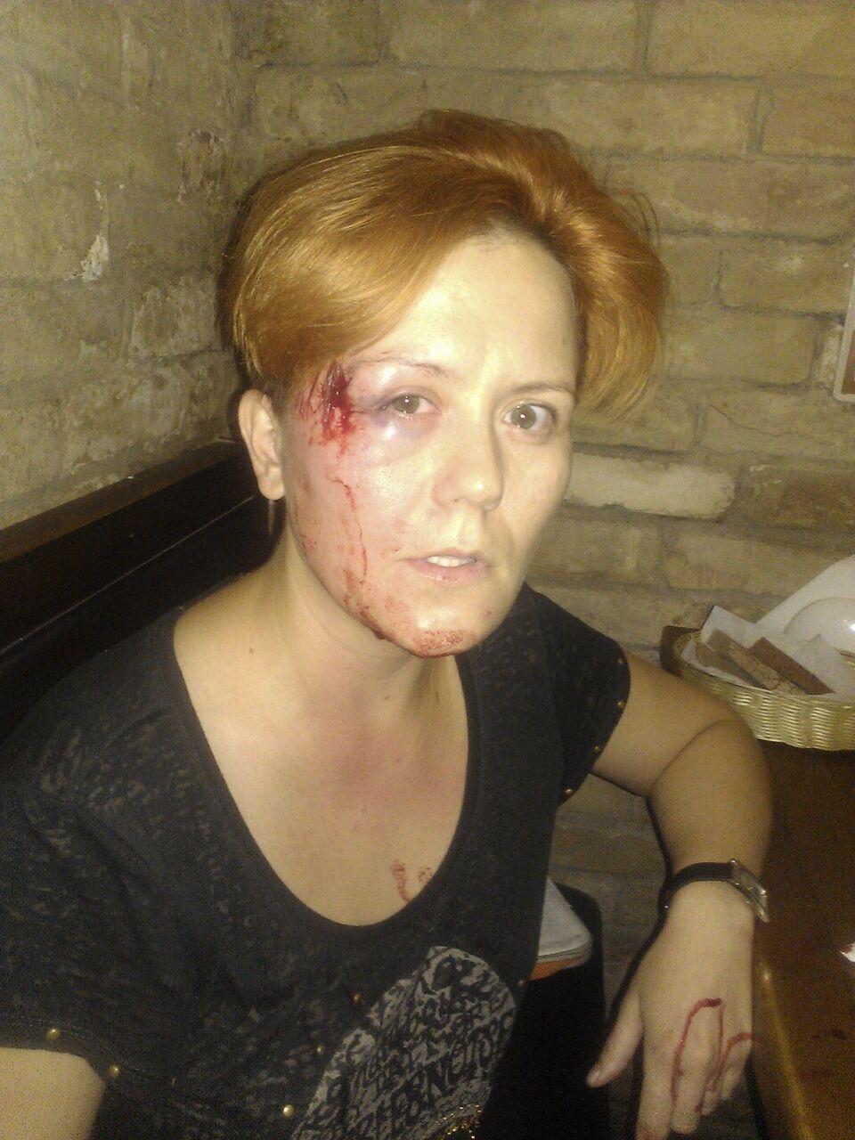 Лідера FEMEN побили в київському кафе і відібрали ноутбук