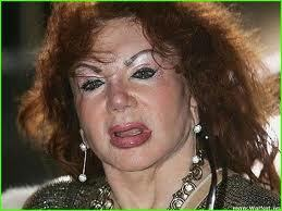 Мать Сталонне изуродовала себя пластикой