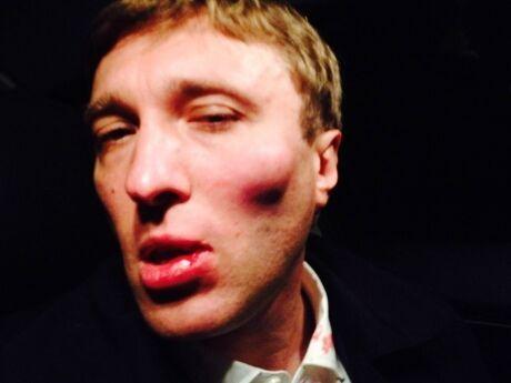 На Киевщине избили кандидата в депутаты