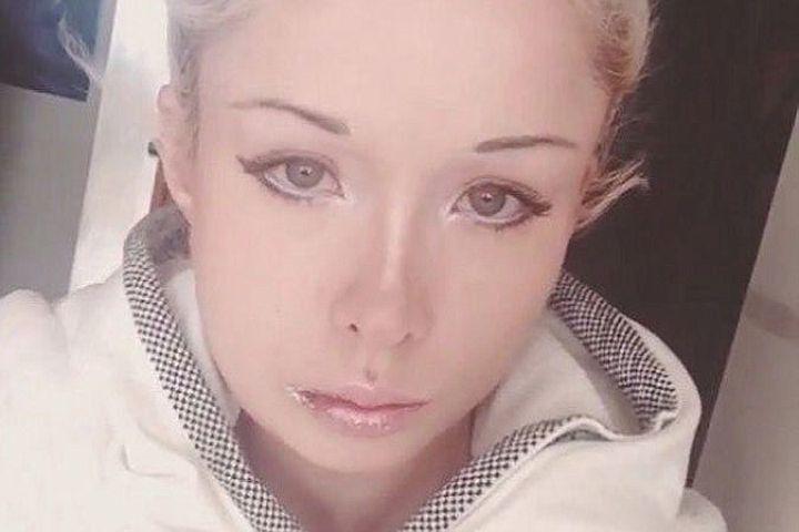 Одесская Барби заявила о нападении на нее в ночь Хеллоуина: фото с перебинтованным лицом и изрезанными губами