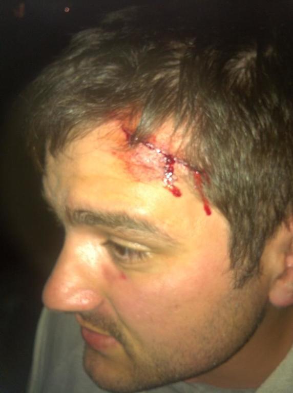 В Киеве избили двух свободовцев