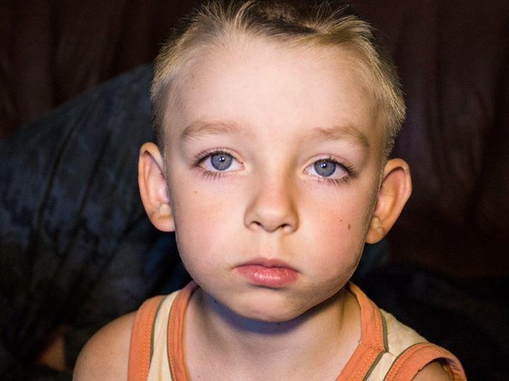 Что война делает с детьми. История ребенка из Лисичанска, который поседел в 5 лет