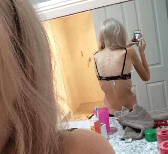 Австралійка опинилася на межі смерті, схуднувши на 40 кг через глузування в школі