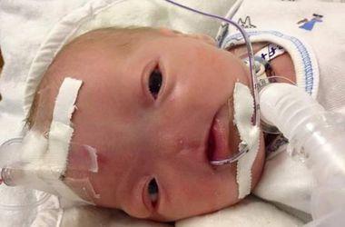 В США родился ребенок без носа