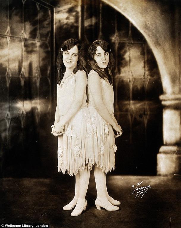 Сестры Хилтон: история сиамских близнецов, которые стали светскими львицами