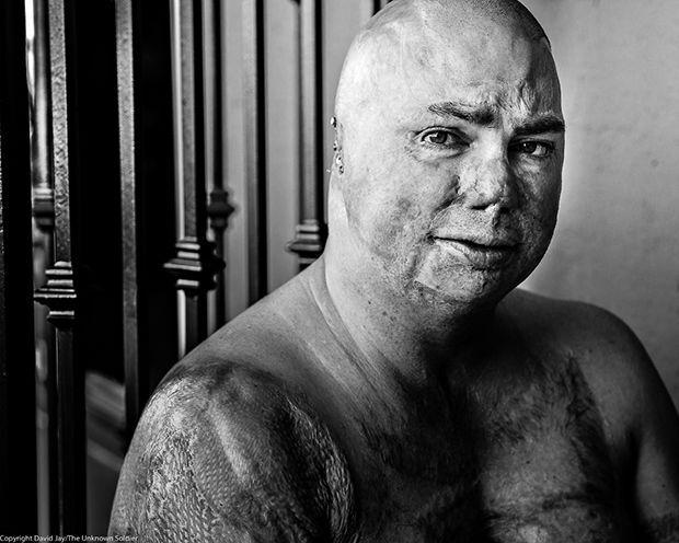 """""""Невідомий солдат"""": пронизливі фото покалічених у війнах американських бійців"""