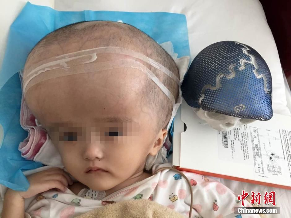 У Китаї лікарі вперше у світі зменшили голову дитини