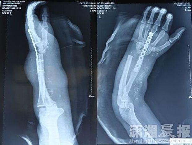 Китайські хірурги пришили руку пацієнта до його ноги: фотофакт
