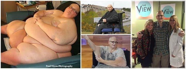 В Британии мужчина бросил невесту, после того как похудел на 305 кг
