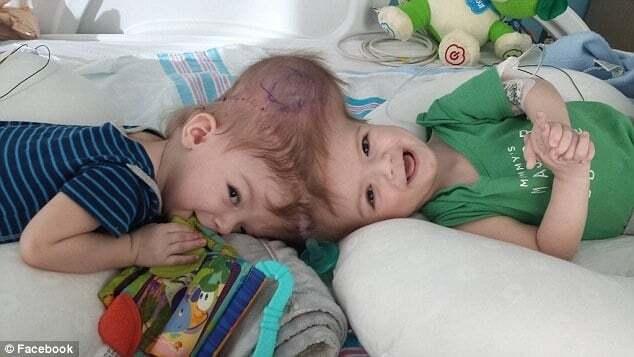 Операция длилась около 20 часов: в США разделили сиамских близнецов