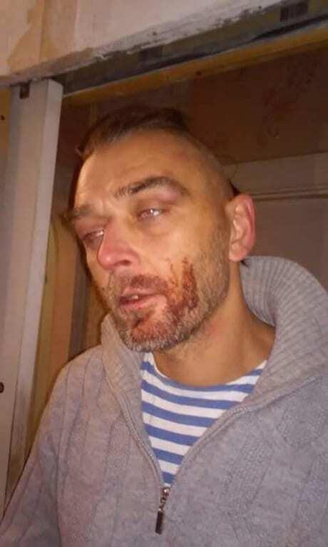 В Николаеве копов обвинили в жестком избиении ветерана АТО, в полиции отрицают