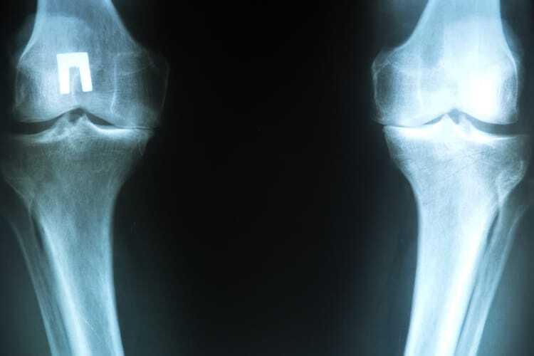 52-річному бійцю АТО нарощують колінні хрящі методом клітинних технологій