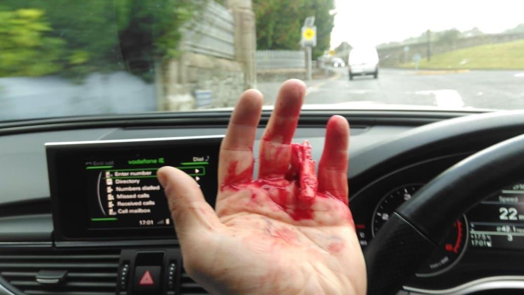 Ирландскому футболисту оторвало палец во время неудачного прыжка