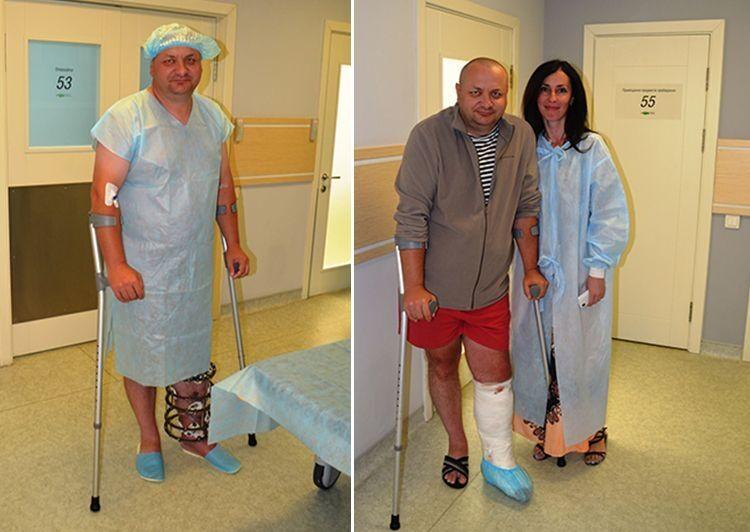 Понад 20 операцій, щоб знову ходити: лікарі з України врятували бійця АТО від інвалідності
