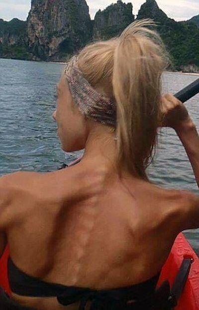 Девушка победила анорексию с помощью бодибилдинга: в сети не оценили трансформацию