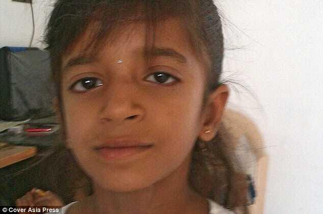 З вуха 12-річної дівчинки витягли гігантських мурах: опубліковано відео