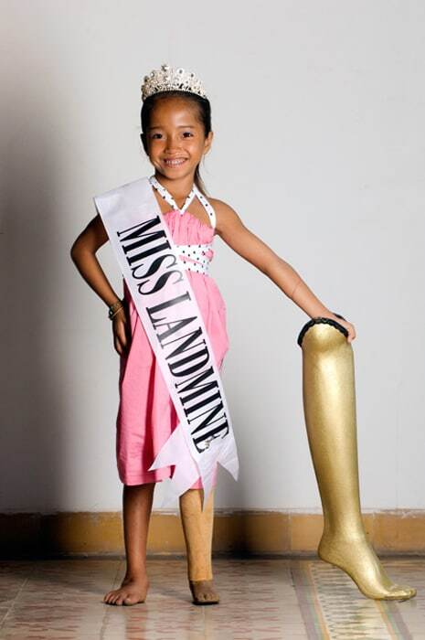 У Камбоджі відбувся конкурс краси жінок, що стали жертвами вибухів мін