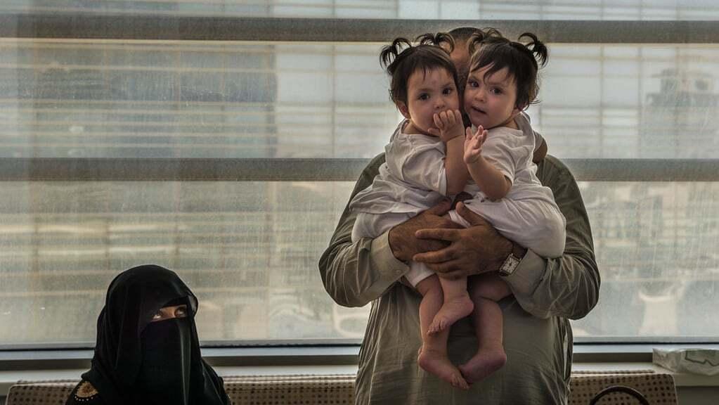 Одно тело – две души: в Саудовской Аравии удачно разделили сиамских близнецов