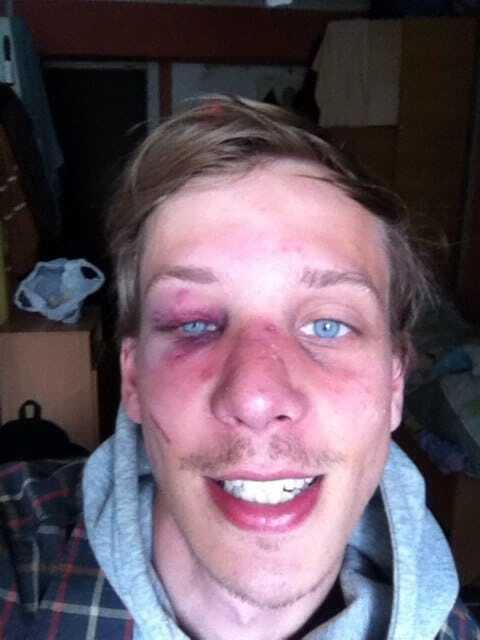 Тренував удар: у Києві біля пабу побили студента
