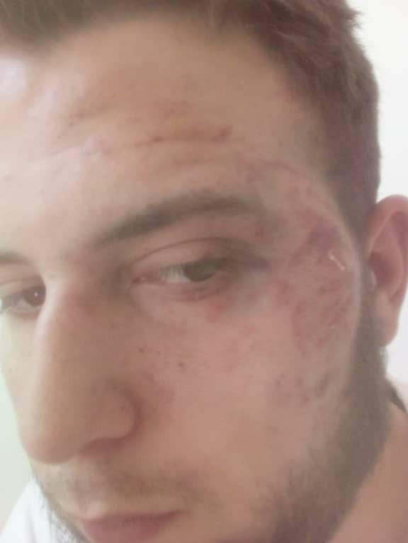 Запугивают? В Запорожье люди в масках жестоко избили журналиста