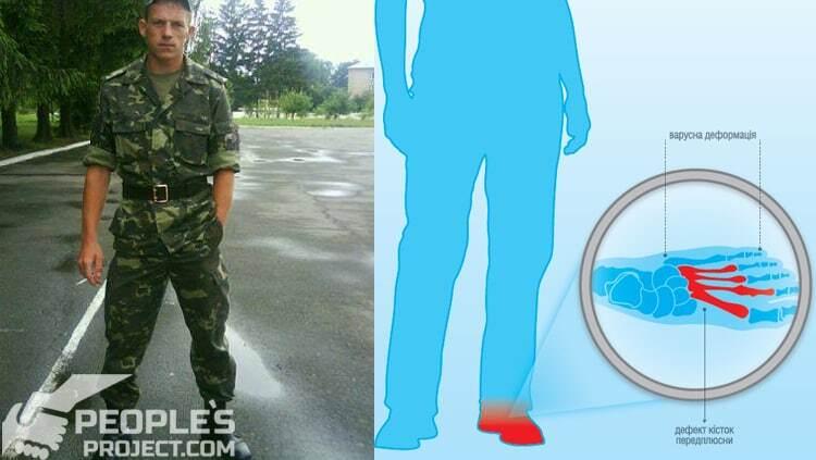 Ампутації можна уникнути: військові потребують допомоги для лікування травмованих кінцівок